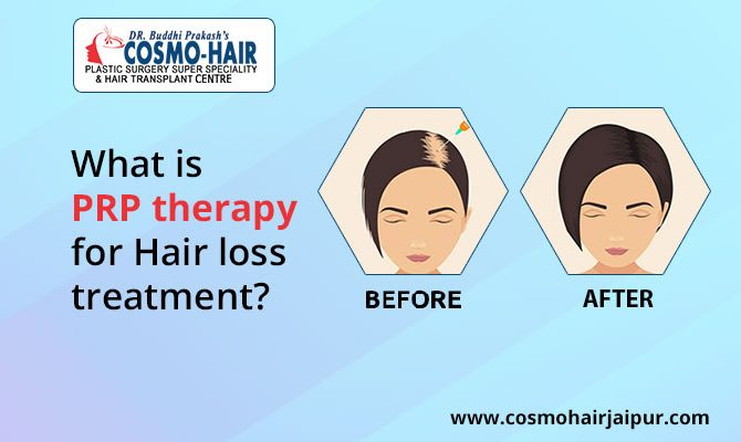 What isPRPtherapy for Hair loss treatment?