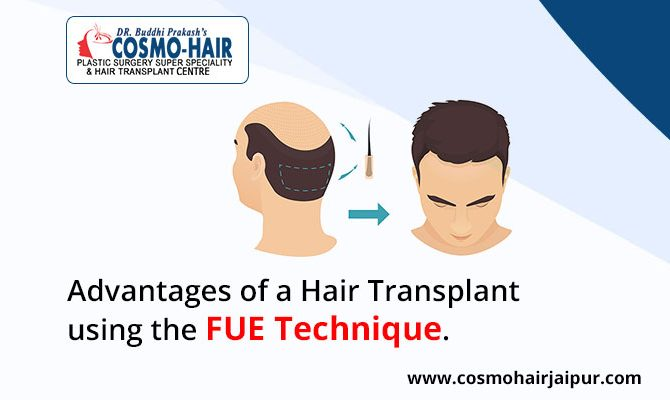 Advantages of a hair transplant using the FUE technique