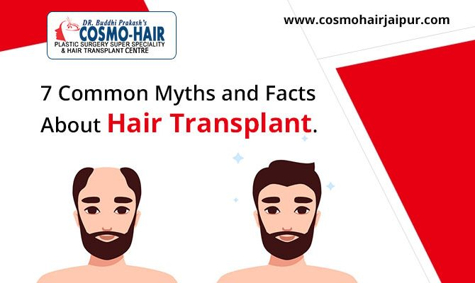 7 Common Myths and Facts About Hair Transplant