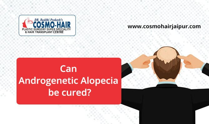 Can Androgenetic Alopecia Be Cured?