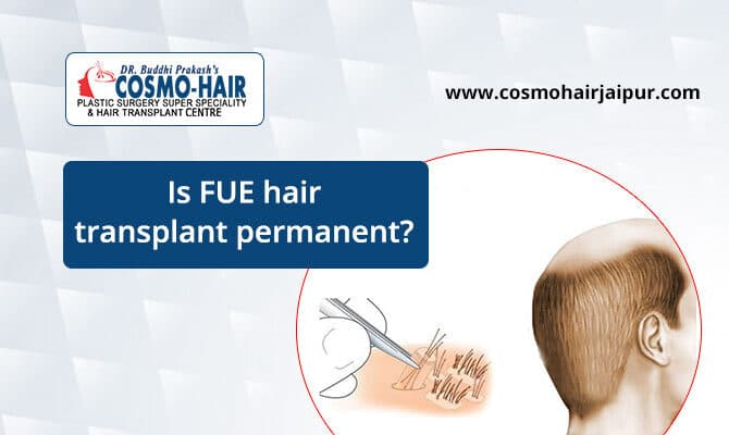 Is FUE Hair Transplant Permanent?