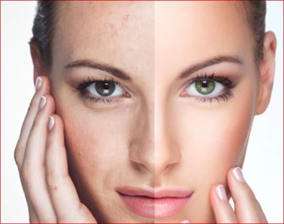 Facial Rejuvenation Treatment in Jaipur