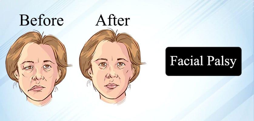 Facial Palsy Treatment in Jaipur