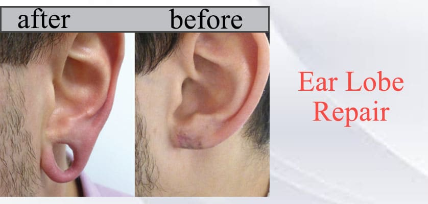 Ear Lobe Repair in Jaipur