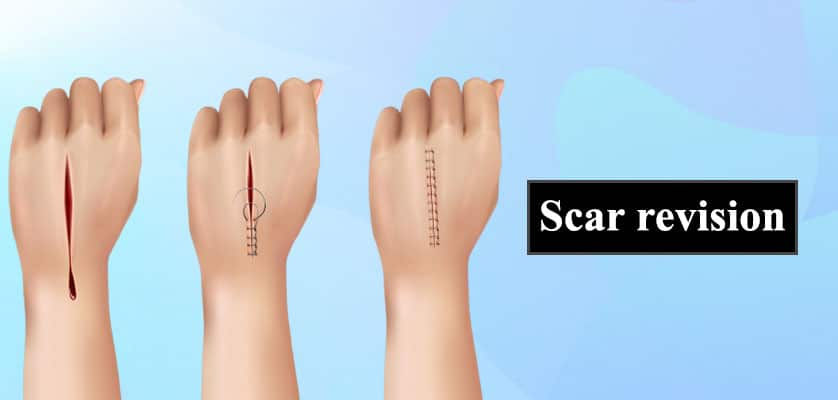 Scar Removal in Jaipur