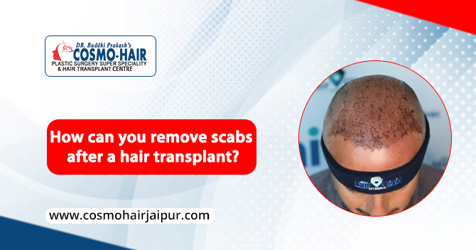 How can you remove scabs after a hair transplant?