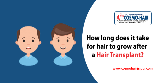 How long does it take for hair to grow after a hair transplant?