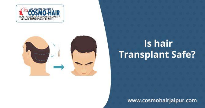 Is Hair Transplant Safe?