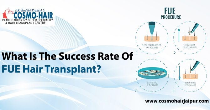 What is the success rate of FUE Hair Transplant?
