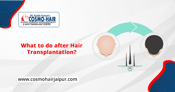 What to do after a Hair Transplantation?